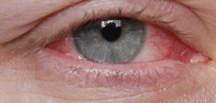 Cách phòng tránh bệnh đau mắt đỏ ở văn phòng hiệu quả